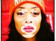 Je vis ma vie avec le #vitiligo
